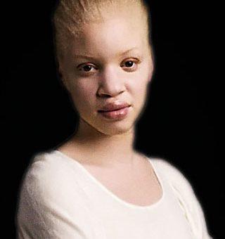 femme-albinos